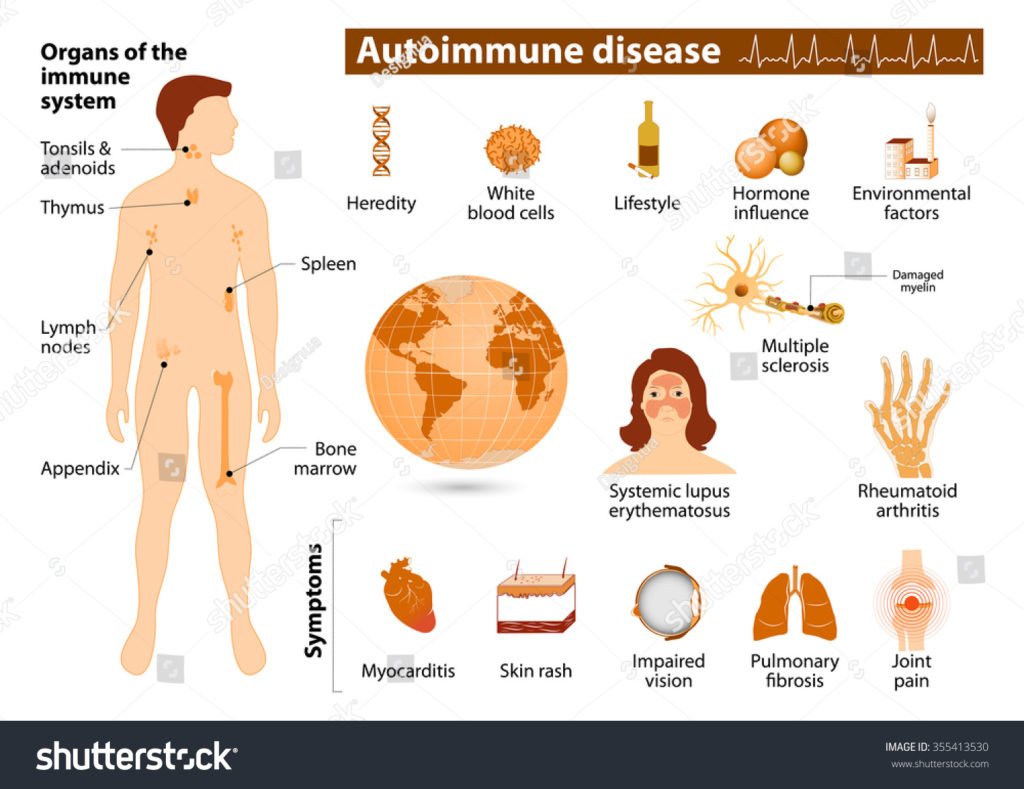 Homeopathic Treatment and Medicine For Autoimmune Disease